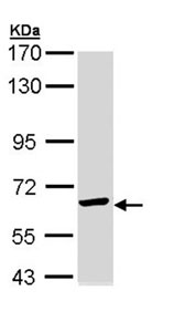 Western blot - TCP1 epsilon antibody (ab96344)