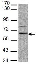 Western blot - Adracalin antibody (ab96351)