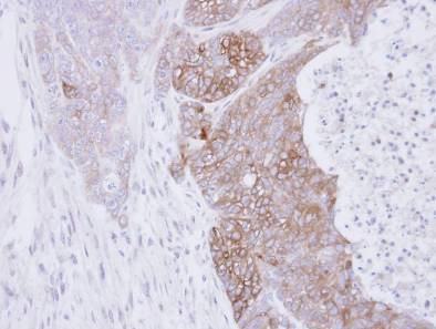 Immunohistochemistry (Formalin/PFA-fixed paraffin-embedded sections) - Rab3C antibody (ab96360)