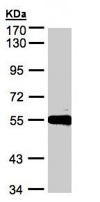 Western blot - Carboxypeptidase M antibody (ab96371)