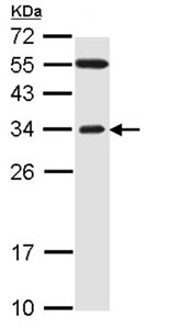 Western blot - FBXO2 antibody (ab96391)