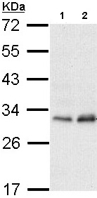 Western blot - PMM2 antibody (ab96399)