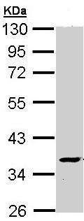 Western blot - ATP6V1C2 antibody (ab96400)