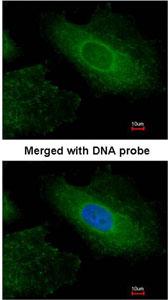 Immunocytochemistry/ Immunofluorescence - Radixin antibody (ab96412)