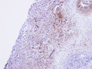 Immunohistochemistry (Formalin/PFA-fixed paraffin-embedded sections) - CACNA1S antibody (ab96413)