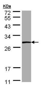 Western blot - Phosphoserine phosphatase antibody (ab96414)