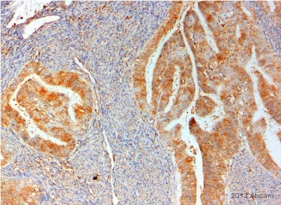 Immunohistochemistry (Formalin/PFA-fixed paraffin-embedded sections) - Anti-AKR1B10 antibody (ab96417)