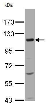 Western blot - KCC4 antibody (ab96424)