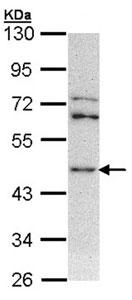 Western blot - ASS1 antibody (ab96433)