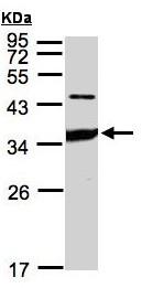 Western blot - ICAM2 antibody (ab96443)