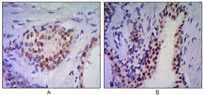 Immunohistochemistry (Formalin/PFA-fixed paraffin-embedded sections) - Nkx3.1 antibody [4H4] (ab96482)