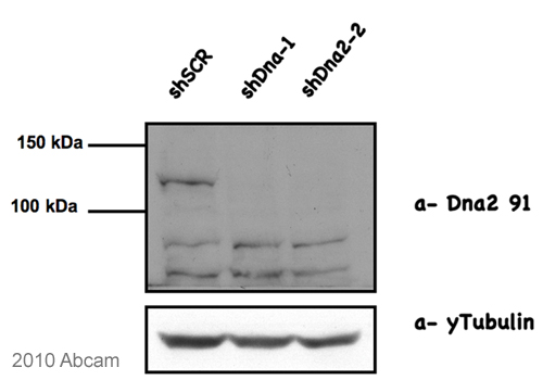 Western blot - DNA2 antibody (ab96488)