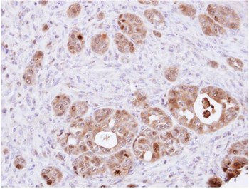 Immunohistochemistry (Formalin/PFA-fixed paraffin-embedded sections) - DDT antibody (ab96495)
