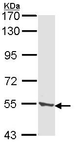 Western blot - TPP1 antibody (ab96498)