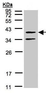 Western blot - GALR2 antibody (ab96499)