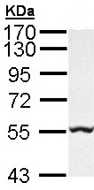 Western blot - GLYCTK antibody (ab96500)