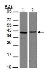 Western blot - EMAP II antibody (ab96506)