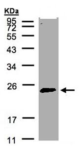Western blot - Rab2 antibody (ab96509)