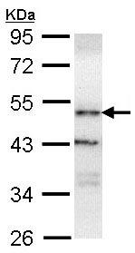 Western blot - ORP1 antibody (ab96522)