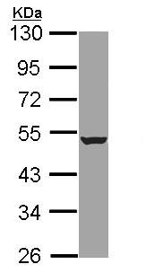 Western blot - HADHB antibody (ab96524)
