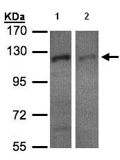 Western blot - RanBP16 antibody (ab96525)