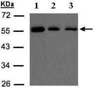 Western blot - OSBPL2 antibody (ab96530)