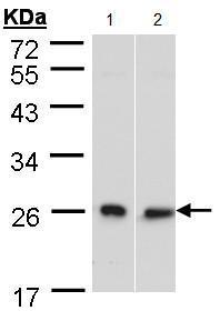 Western blot - DNAJB6 antibody (ab96539)