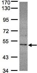 Western blot - Selenophosphate synthetase 2 antibody (ab96541)