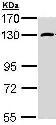 Western blot - Rbm15 antibody (ab96544)