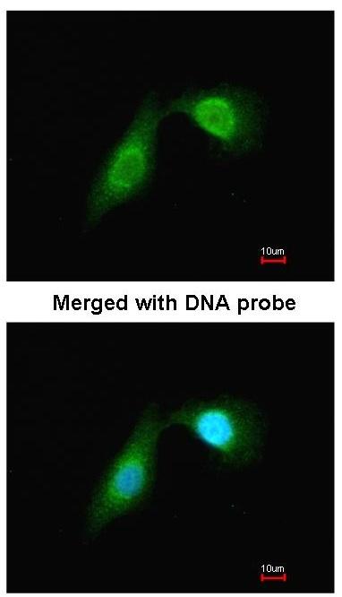 Immunocytochemistry/ Immunofluorescence - DCAMKL2 antibody (ab96559)