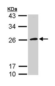 Western blot - CD42c antibody (ab96565)