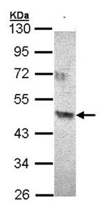 Western blot - ACAD8 antibody (ab96567)