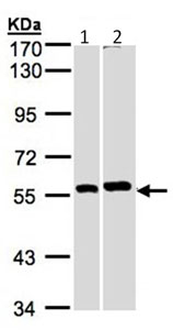 Western blot - PPP3CB antibody (ab96573)