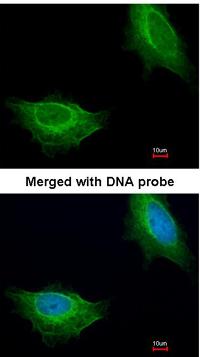 Immunocytochemistry/ Immunofluorescence - ADCK1 antibody (ab96577)