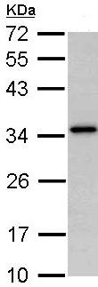 Western blot - NAT1 antibody (ab96579)