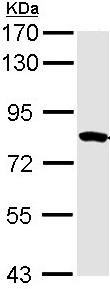 Western blot - MTMR2 antibody (ab96583)