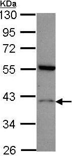 Western blot - HRH2 antibody (ab96590)