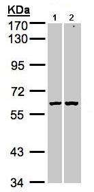 Western blot - PARP3 antibody (ab96601)