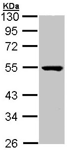 Western blot - PSKH1 antibody (ab96602)