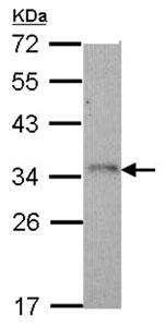 Western blot - NKG2D antibody (ab96606)