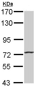 Western blot - Hhip antibody (ab96609)