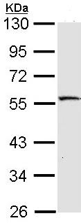 Western blot - MST4 antibody (ab96610)