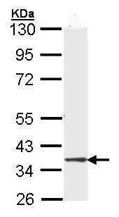 Western blot - DMC1 antibody (ab96613)