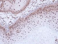 Immunohistochemistry (Formalin/PFA-fixed paraffin-embedded sections) - DMC1 antibody (ab96613)