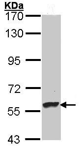 Western blot - Dopamine beta Hydroxylase antibody (ab96615)