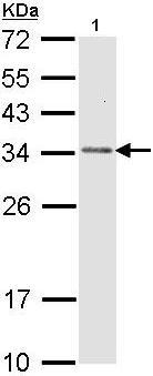 Western blot - CAPZB antibody (ab96618)