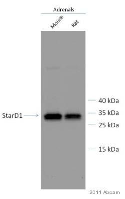 Western blot - Anti-StAR antibody (ab96637)