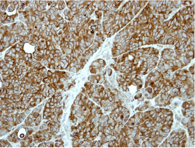 Immunohistochemistry (Formalin/PFA-fixed paraffin-embedded sections) - Anti-MAP2K1IP1 antibody (ab96653)