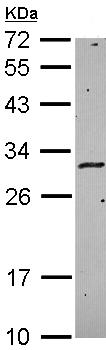 Western blot - HLA DM antibody (ab96664)