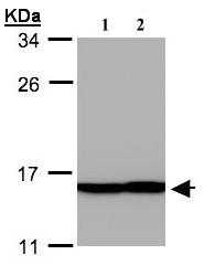 Western blot - Profilin 2 antibody (ab96676)